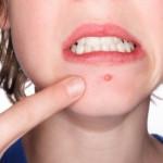 alcohol acne