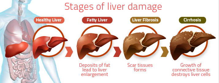 Unhealthy Liver From Alcohol | www.pixshark.com - Images ...